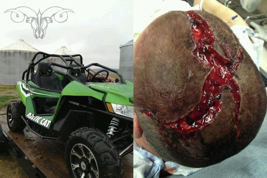 Do You Wear A Helmet Very Graphic Arcticchat